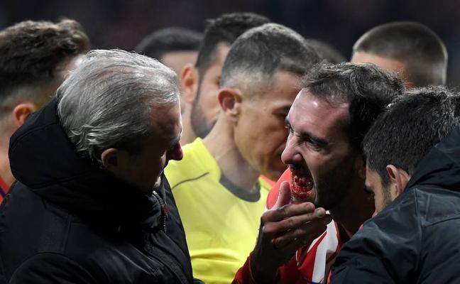 Savic y Godín, bajas del Atlético en La Rosaleda
