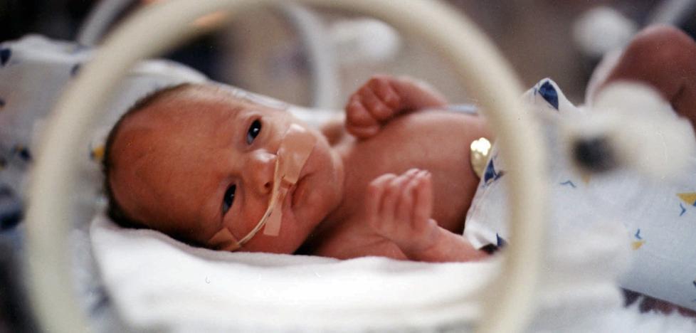 Los bebés prematuros pueden tener problemas en el cerebro auditivo y el habla