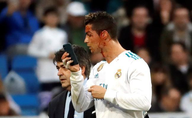Goleada terapéutica del Real Madrid en el regreso de la 'BBC'