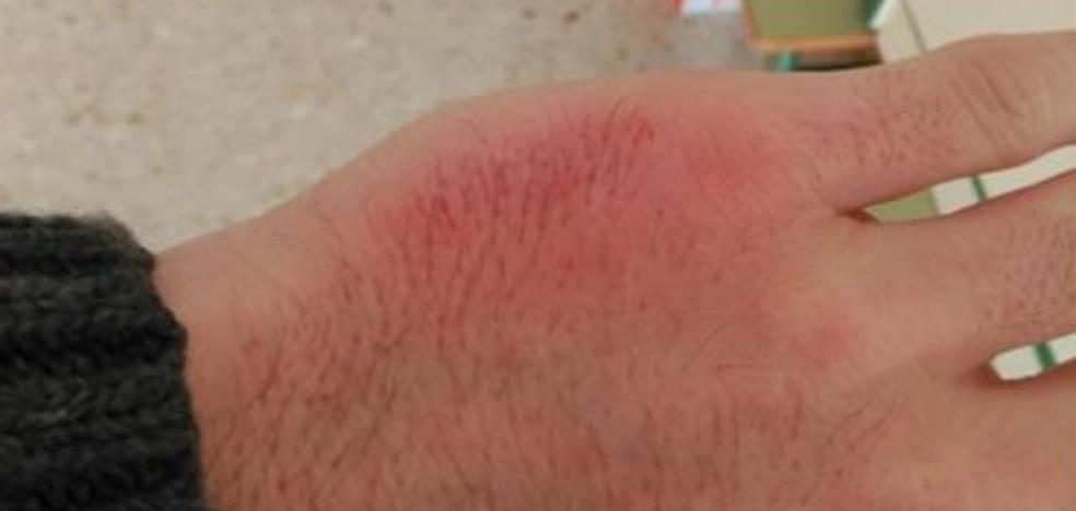 «Soy docente y esta agresión me la ha hecho un alumno», la denuncia de un profesor andaluz tras ser golpeado