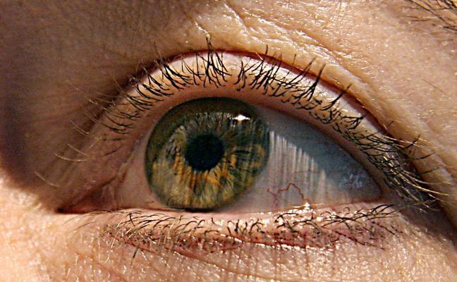 Día Mundial del Glaucoma: Qué es, síntomas y señales de alarma
