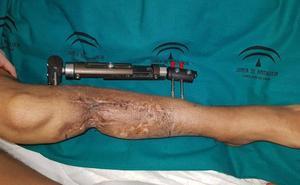 Cirujanos de Carlos Haya hacen un trasplante de peroné y evitan amputar la pierna del paciente