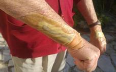 Un buitre ataca a un octogenario en el jardín de su casa en Palencia