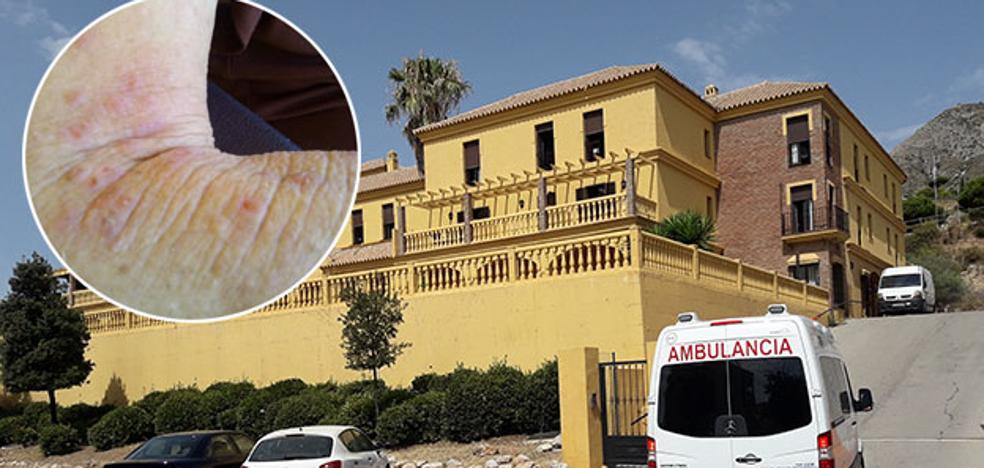 La Junta encargará inspecciones para determinar si el funcionamiento de la residencia en la que se declaró un brote de sarna en Benalmádena «es adecuado»