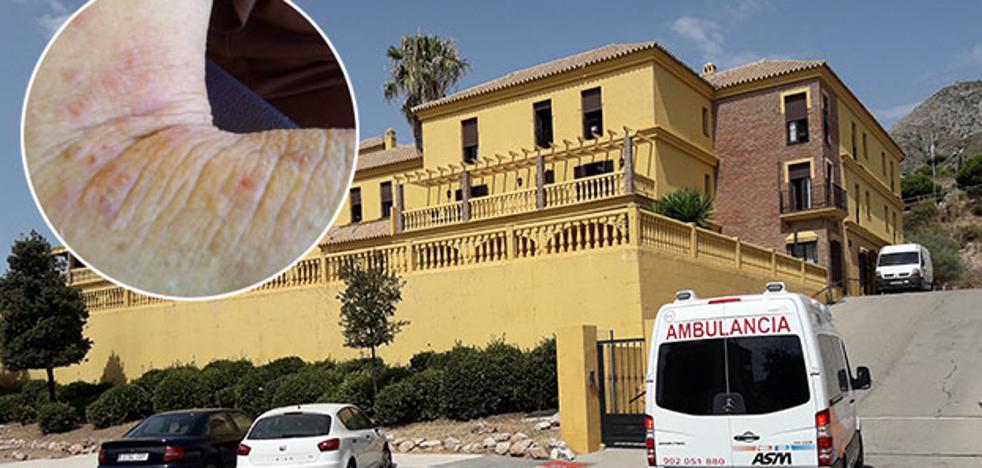 La Junta declara un brote de sarna en una residencia de ancianos de Benalmádena