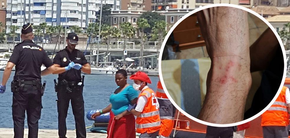 Policías que atienden a migrantes en Málaga exigen medidas para evitar nuevos contagios de sarna
