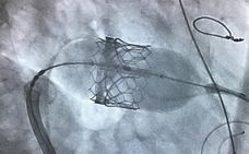 Cardiólogos del Hospital Regional de Málaga realizan con éxito un implante de válvula mitral con catéter