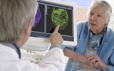 ¿Por qué es tan importante diagnosticar el alzhéimer de forma precoz?
