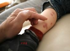 Cómo sobrellevar la dermatitis atópica de tu hijo