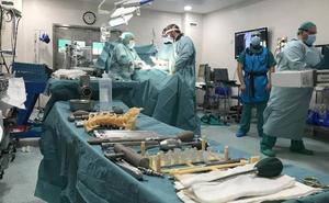 Traumatólogos de Málaga emplean la impresión 3D para operar a una paciente con grave escoliosis de columna