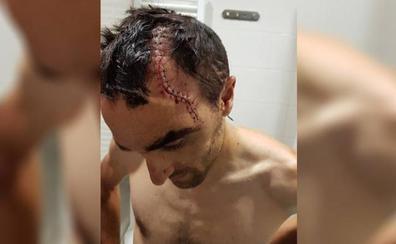 Maté aparece tras su grave caída en la lista provisional del Cofidis para la Vuelta a España