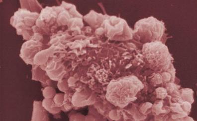 Científicos españoles diseñan una técnica pionera para combatir el cáncer desde el interior del tumor