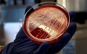 Unos 60 afectados de listeriosis emprenden acciones legales