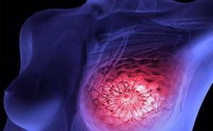 Demuestran la efectividad de la tecnología Protac contra el cáncer de mama