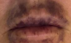 El cosmético fraudulento que dañaba los labios