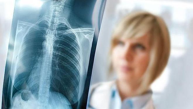 Todo lo que siempre quiso saber de los rayos X