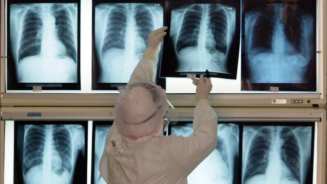 Los médicos instan a vacunarse de la neumonía a los mayores de 60 años