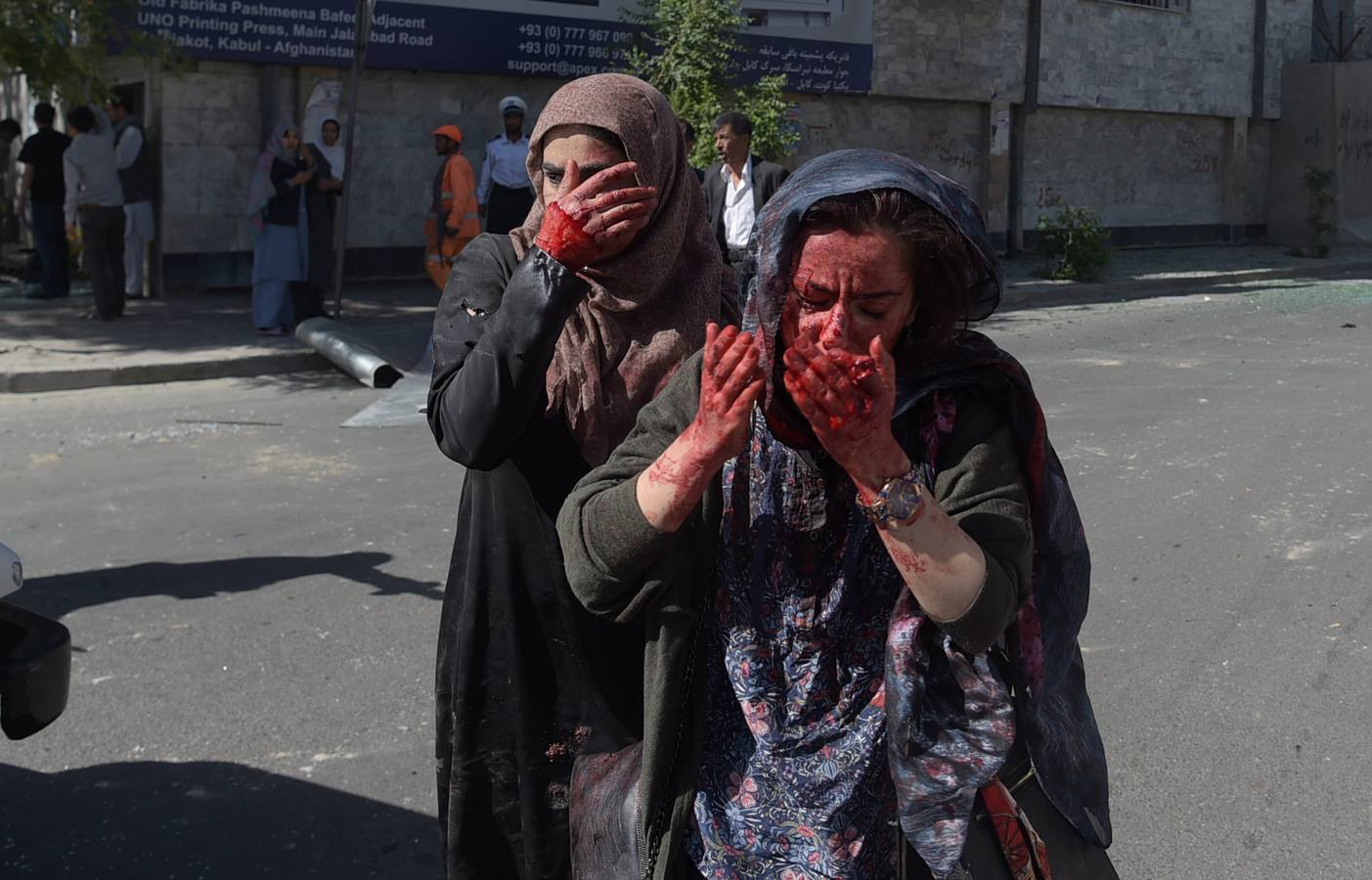 Al menos 90 muertos y 380 heridos en un atentado en una zona de alta seguridad de Kabul