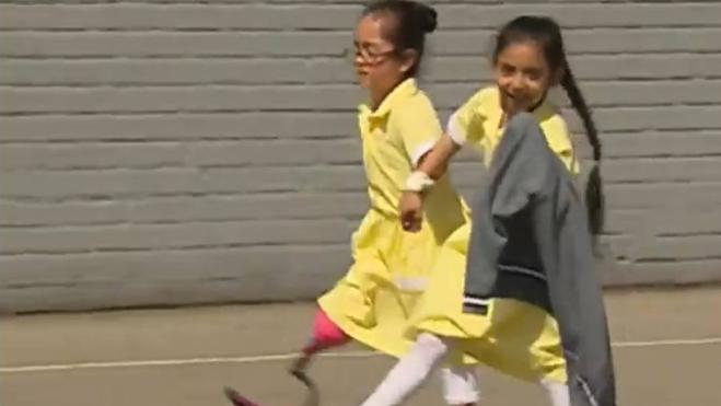 El emotivo recibimiento de unas niñas a su compañera con una prótesis en la pierna